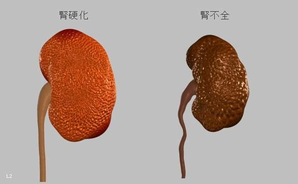 腎不全 | 病気について | 循環器...