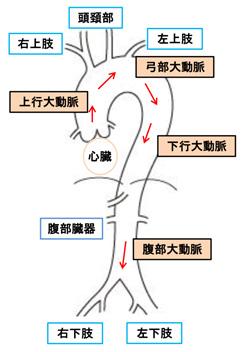 初期 症状 腹部 大動脈 瘤