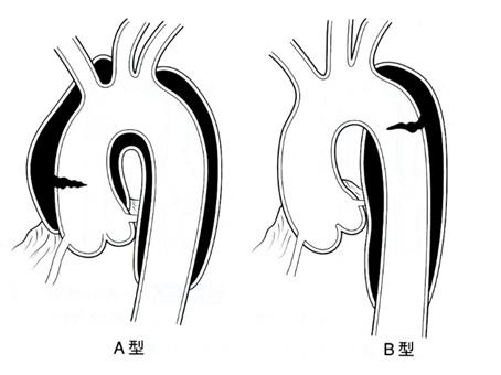 大動脈 解離 初期 症状