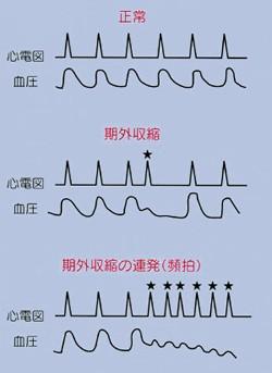 図2:心電図でみる血圧の波