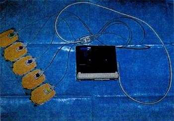 図3:ホルター心電計(携帯型)