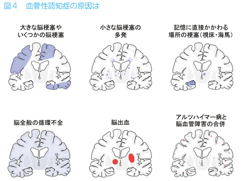 血管 性 認知 症 脳