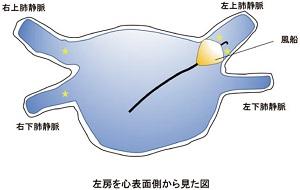 バルーン法(冷凍凝固バルーン法、ホットバルーン法)によるアブレーション治療