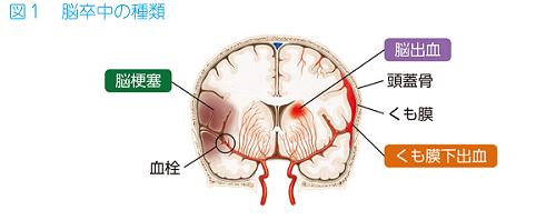 脳出血 の 後遺症