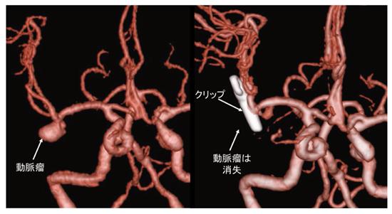 脳 動脈 瘤
