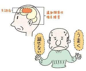 高次脳機能障害とは?意味や種類を総まとめ!