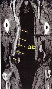 図1:深部静脈血栓症