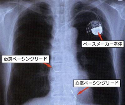 ペースメーカーとは|大阪医科大学 外科学講座 胸 …