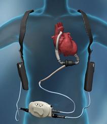 補助人工心臓[Ventricular assi...