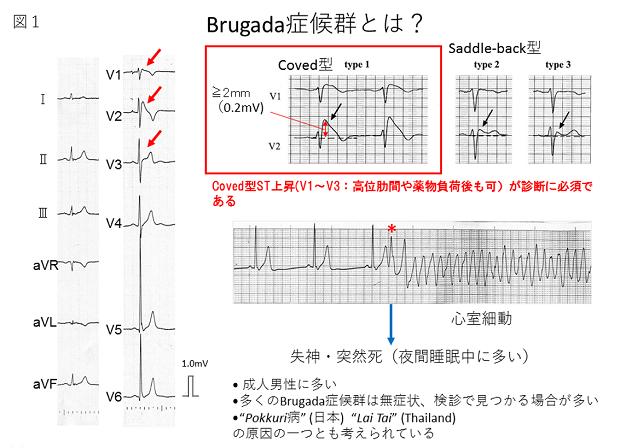 Brugada症候群 | 不整脈科 | 心臓血管内科部門 | 診療科・部門のご ...