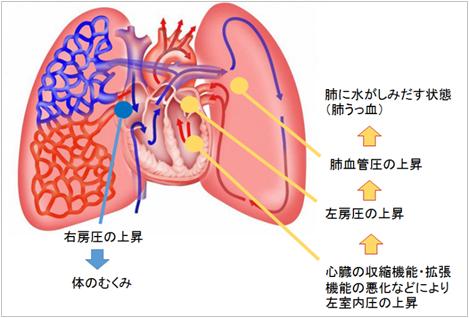 水 たまる が に 心臓