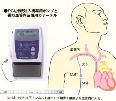 肺循環科 | 肺循環科 | 心臓血管内科部門 | 国立循環器病研究センター病院 大 中 小 背景