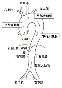 解離 心臓 大動脈