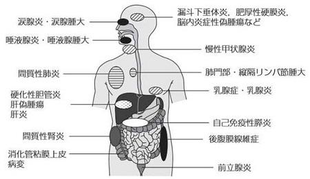 IgG4関連腎臓病 | 高血圧・腎臓...