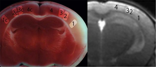 (図1)撮影した画像と実際の脳の状態の比較